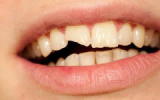 К чему снится поломанный зуб
