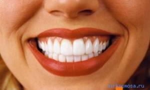 К чему снится налет на зубах