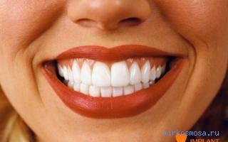 К чему снится много зубов во рту