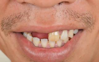 Сонник человек без зубов