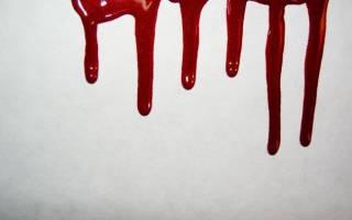 К чему снится парень в крови