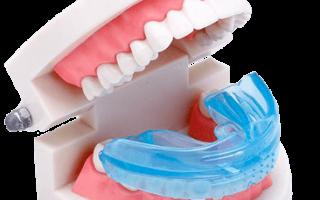 Сонник брекеты на зубах