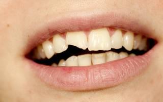 Отколотый зуб во сне