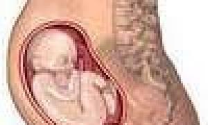 К чему снится беременность невестки