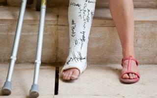 К чему снится сломать ногу во сне