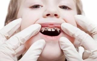 Сонник к чему снятся гнилые зубы
