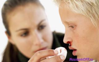 Кровь из носа у ребенка во сне