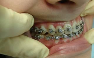 Сонник кривые зубы у себя