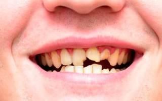К чему снится сломанный зуб передний