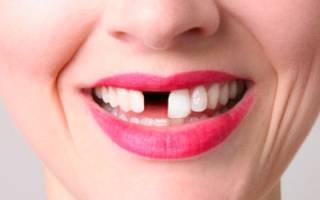 К чему снится что отпало пол зуба