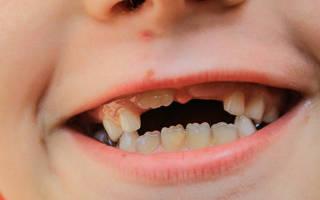 Новые зубы во сне