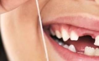 Видеть во сне как выпадают зубы