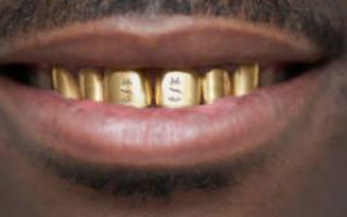 К чему снятся золотые зубы